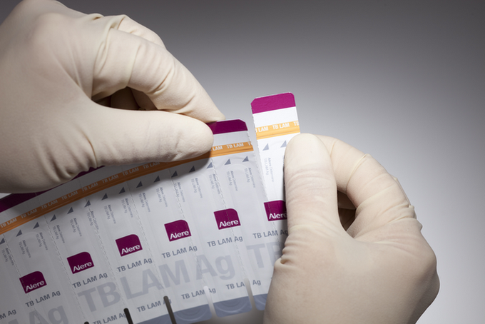 Photo of person holding TB lam test strips