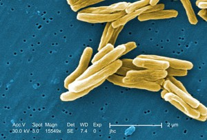 Image of TB bacteria