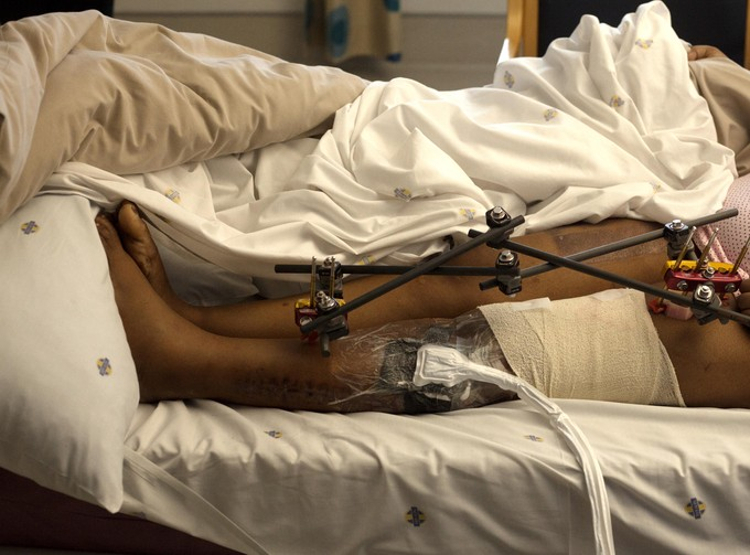 Photo of person with injured leg in hospital bed.