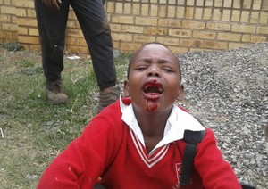 Photo of wounded boy