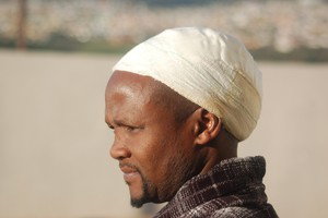 Photo of a man with a bandaged head