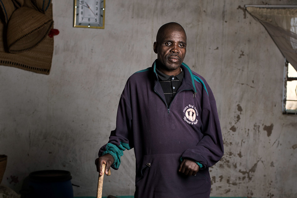 Myekelwa Mkenyane is a former miner who has silicosis. Photo by Thom Pierce.