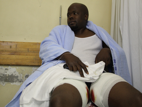Photo of a man in hospiyal with bandaged legs