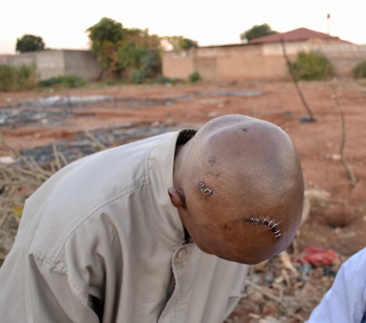 Photo of a man with a shaved head showing wounds